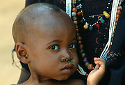 With flies around his nose a child holds onto his mother's necklace at Gorom Gorom Hospital in Burkina Faso