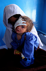 SHABANA.RECOVERY ROOM.KABUL 17 August 2005.Maiwand Hospital..Shabana in the recovery room with her mother..The previous day she underwent a four-hour plastic surgery operation..She will be dismissed in two days, Friday the 19th...Shabana. a nine months old Afghan girl, has been diagnosed with a 'neurofibroma'. This is a tumor or growth located along a nerve or nervous tissue. It is an inherited disorder. If left unchecked, a neurofibroma can cause severe nerve damage leading to loss of function to the area stimulated by that nerve...The Rehabilitative Surgery Unit (RSU) at Maiwand Hospital is fully supported by the French NGO Medical Refresher Courses for Afghans (MRCA), also by the French Minister of Foreign Affairs, and by the Embassy of Japan under the Grant Assistance for Grassroots Project (GAGP). The Italian NGO Operation Smile Italia Onlus provides training to the Doctors...Maiwand Hospital dates back to the rein of Nadir Shah in the 1930s.