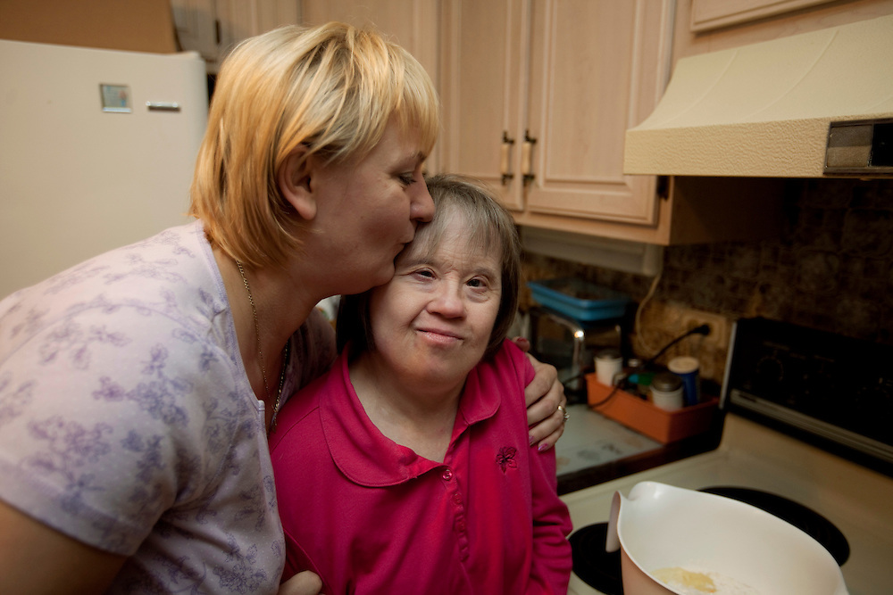 Companion Tonia Kulig, left, gives Mary Beth Solinski, a 59 year old, with Down Syndrome, a hug and a kiss, as they put away groceries after grocery shopping...Aging adults with Down Syndrome. In 1983, people with Down syndrome could expect to live to age 25. Today, their life expectancy is 60 years. We interview a 59-year-old patient who has outlived her parents and is now in AARP. She has trouble walking, but has lots of interests, such as cooking, arts and crafts and reading.