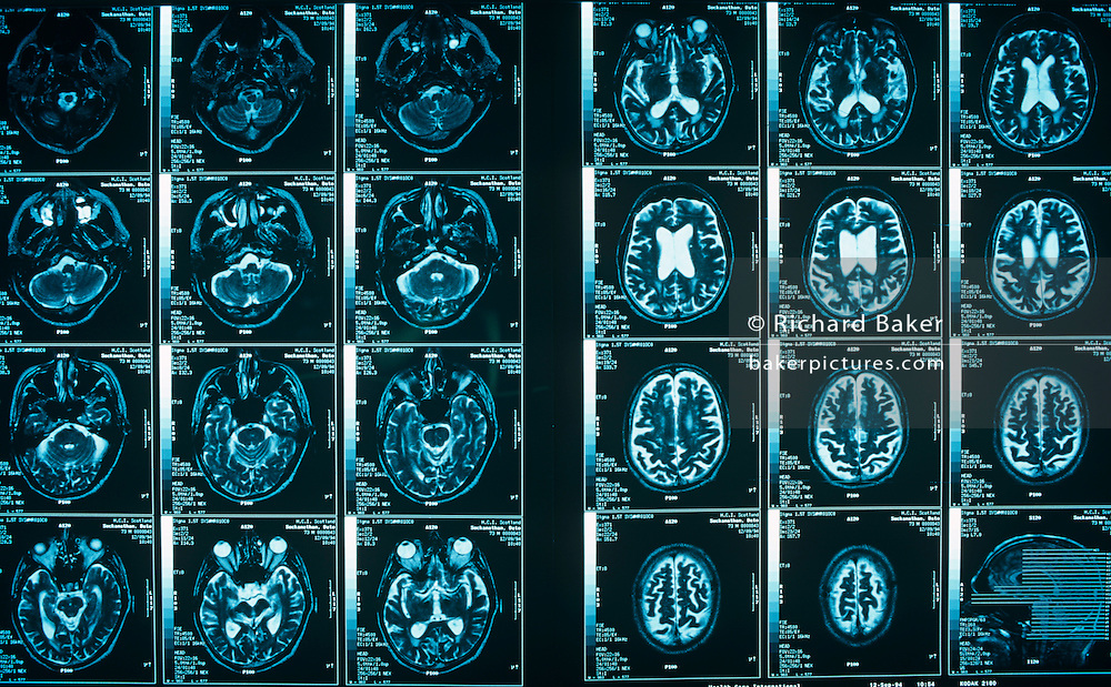 From a hospital light box, we see a detail of a Magnetic Resonance Imaging (MRI) scan. Sections of a patient's skull and brain illustrate to doctors, potential abnormalities. Dyes used in X-ray and CT scans in the same way because both areas use X-rays (ionizing radiation). Agents work by blocking the X-ray photons from passing through the area where they locate and reach the X-ray film. This results in differing levels of density on the X-ray/CT film but the dyes have no direct physiologic impact on the tissue in the body. MRI contrast works by altering the local magnetic field in the tissue being examined. Normal and abnormal tissue will respond differently to this slight alteration, yielding differing signals. Varied signals are transferred to the images, visualizing many different types of tissue abnormalities and diseases.