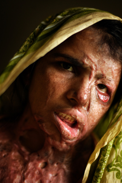 Azra, 30, who was burned with acid by her brother-in-law and now cries every time she has to show her face, Lahore, Pakistan, May 2, 2005. Azra now lives at Dastak, a shelter opened in 1990 for abused women seeking refuge by the AGHA Legal Aid Cell. Authorities at the shelter say they have arranged medical care and treatment for her burns and scarring.
