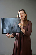 4th January 2010. Los Angeles, California. Frequent international traveler, Berna Kieler, who has complained to authorities that the 12 inch titanium rod in her hip, registers on all airport x-ray machines except at JFK airport, in New York. PHOTO © JOHN CHAPPLE / www.chapple.biz.john@chapple.biz  (001) 310 570 9100.