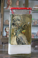 torso of a child at an anatomy museum in a hospital in Cairo used by medical students studying anatomy