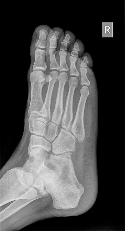 x-ray of a foot showing a fracture in the 5th metatarsalia of a 31 year old male