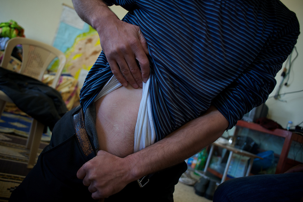 Aman, a 36 year old Syrian man, shows marks of alleged torture inflicted by Syrian secret police during detention at Homs prison.