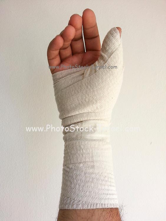 Bandaged hand and arm