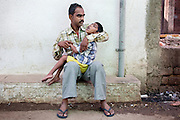 Rashid Ali, 35, is holding his son Rahil Ali, 7, a boy suffering from a severe neurological disorder, while sitting in their home in Bhopal, Madhya Pradesh, India, near the abandoned Union Carbide (now DOW Chemical) industrial complex. Rahil lives with his father and his mute and deaf grandmother, Bano Bi Ali, 70, in a small, single room his father rents inside a larger house. Rahil's mother left the family three years ago, his father says, because of the hardship and stigma associated to birth defects in India. She took with her Rahil's two siblings, a sister now aged 6 and a brother aged 3, and remarried. In the past, Rashid and his now ex-wife had no choice but to feed the family on contaminated water for a period about six years, in which all three children were born. But while his siblings appear to be healthy to this day, Rahil was diagnosed with torch infection and Lissencephaly after a CT scan was made of his brain soon after his birth. The latter disorder is incurable, and children in similar conditions to Rahil's have a average life expectancy of less than ten years.