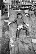 A wounded child at a Khmer Peoples National Liberation Front camp on the Thai-Cambodian border. During the Pol Pot genocide, nearly half the population of Cambodian was murdered.