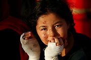 A Libyan girl, who suffered burns in a fire on a boat of migrants, sits on the German NGO migrant rescue ship Sea-Watch 3 as it reaches a rendezvous point with the Italian Coast Guard to medically evacuate injured and sick migrants, off the coast of the Italian island of Lampedusa in the western Mediterranean Sea, July 30, 2021.  REUTERS/Darrin Zammit Lupi     TPX IMAGES OF THE DAY - RC27VO92PD9K