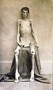A Federal prisoner, returned from prison American Civil War c 1865