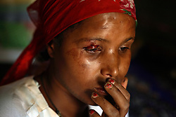 A young prostitute named China sits stunned after being beat up by a man visiting Kabele Five in Bahir Dar, Ethiopia on May 17, 2007. Many of the girls running away from child marriages end up trafficked to brothels where they face incredible violence.