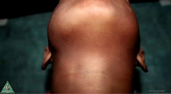 """Indian doctors were at their wit's end after excising as many as 500 teeth from a seven-year-old's palate in Chennai, India. The young patient was only three when his lower right jaw started to swell up but was left undiagnosed for four years as his parents lacked the right knowledge. The doctors diagnosed it to be a rare case of """"compound composite ondontome"""", the boy was brought to the hospital with a swelling in his lower right jaw. """"Later as swelling increased, the parents brought the boy to our hospital,"""" said P.Senthilnathan, Professor -Department of Oral and Maxillofacial Surgery at at the Saveetha Dental College and Hospital on Wednesday. According to the doctors, the patient's family was worried that the swelling was carcinogenic. An X-ray and CT-scan of the boy's lower right jaw showed a lot of rudimentary teeth following which the doctors decided on the surgery. A team of doctors operated on the boy for five-long hours and successfully removed 526 teeth-like structures from his mouth. """"We opened up the jaw after administering general anaesthesia and saw a bag/sack inside it. The sack, weighing about 200 grams, was carefully removed and was later found to contain 526 teeth -- small, medium and big sized,"""" said Dr Senthilnathan. Dr. Pratibha Ramani, Professor and Head of Department of oral and maxillofacial pathology, said, """"Social consciousness on emerging environmental hazards is imperative. Every tissue information is patient's right, surgical decision making is the key and final diagnostic expert is the pathologist."""" According to the doctors, this is the first ever case documented in the world in which in an individual has been found to have so many minute teeth. Though some were very tiny particles, the doctors said, they had the properties of teeth. It took five long hours for the doctors to remove all the minute teeth from the sack. """"It was reminiscent of pearls in an oyster,"""" the doctors said. """"The boy was normal three days after the sur"""