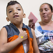 CAPTION: Nine-year-old Arnoldo Martinez was operated on in a hospital in San Pedro Sula, the largest city in Honduras, in order to repair his cleft lip. Since then, his family heard about Smile Train through the media. The doctors at Hospital Escuela will operate on the huge cleft palate within a week. LOCATION: Hospital Escuela, Tegucigalpa, Honduras. INDIVIDUAL(S) PHOTOGRAPHED: Arnoldo Martinez Vargar (left) and Norma Angelina Castellanel (right).