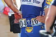 A battered Philippe Gilbert (BEL - QuickStep - Floors) after his heavy fall over a wall during the 105th Tour de France 2018, Stage 16, Carcassonne - Bagneres de Luchon (218 km) on July 24th, 2018 - Photo George Deswijzen / Pro shots / ProSportsImages / DPPI