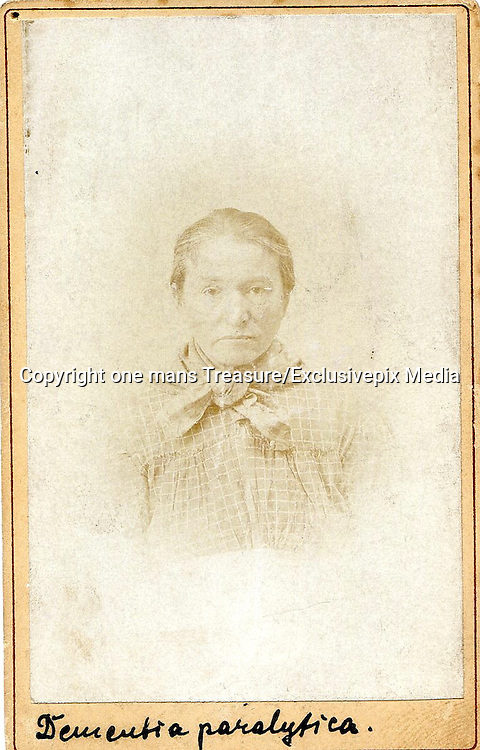 1880s eerie Portraits of psychiatric patients <br /> <br /> When Hugh Welch Diamond photographed psychiatric patients at Surrey County Hospital in the 1850s, he believed the camera was a new technology that could record things beyond human perception. In one way he was right; <br /> photographs could capture objects invisible to the naked eye. He was mistaken in believing that abstract ideas would freely offer themselves to the photographer. A photograph of a psychiatric patient was not a photograph of their illness.<br /> <br /> The mistake wasn't his alone. At Salpêtriére hospital outside of Paris, doctors and photographers including Guillaume Duchenne, Paul Régnard and Désiré-Magloire Bourneville began photographing psychiatric patients with much the same <br /> idea in mind. Duchenne took a series of photographs of a Parisian shoemaker suffering from Bell's palsy. In order to record emotions Duchenne attached electrodes to various parts of the patient's face to trigger muscular responses. <br /> The shoemaker's subjection to science wasn't entirely in vain. Duchenne was able to determine that emotional displays activated specific muscles, if a person smiled without using particular muscles that smile was either false or it could indicate a neurological disorder.<br /> <br /> These eerie images  taken at a French asylum in the 1880s, Each carte has a small pin hole in the top left. This means they could have been placed on a wall or had a loop of wire holding them together. <br /> <br /> they would have been used to help student doctors identify patients or their illnesses. Photographs of patients at asylums were common in the 1880s. The photographic team led by Albert Lone at Salpetriere Hospital in Paris is famous for the work done under the head of the asylum, Jean Marie Charcot. Hugh Welch Diamond's work is also well known.<br /> <br /> iIlnesses such as epilepsy and STDs were typically treated at asylums.<br /> ©one mans Treasure/Exclusivepix Media