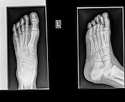 Healthy X-ray ofa foot of a 12 year old male
