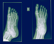 x-ray of a foot showing a fracture in the proximal phalanx of the big toe on the righ foot of a 30 year old female patient
