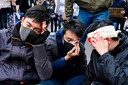Glasgow, Scotland, UK. 19 January, 2020. Hong Kong students and Amnesty International stage a pro-democracy protest on Sauchiehall Street in Glasgow city centre. The protest was one of several in cities worldwide to protest against the anti-democratic policies of the Chinese Communist Party. Pictured. Protestors with mock bloody wound on head. Iain Masterton/Alamy Live News.