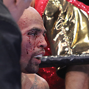 Luis Collazo is seen with a cut over his right eye against Keith Thurman at the Premier Boxing Champions boxing match for the WBA Welterweight title on ESPN at the USF Sun Dome, on Saturday, July 11, 2015 in Tampa, Florida.  Thurman won the bout when the corner of Collazo stopped the fight at the beginning of the eighth round. (AP Photo/Alex Menendez)