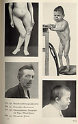 Kunst und Rasse' (Art and Race) by Paul Schultze-Naumberg (Berlin, 1928). The author took the works of the Greek sculptor Polykleitos to be ideals of the human form and railed against  modern 'degenerate' art's imitation of physical deformity and ugliness. The book's illustrations included photographic comparisons.