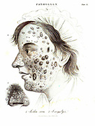 Illustration of a pathological skin disease From the Encyclopaedia Londinensis or, Universal dictionary of arts, sciences, and literature; Volume XIX;  Edited by Wilkes, John. Published in London in 1823