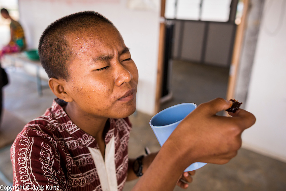 03 MARCH 2104 - MAE KASA, TAK, THAILAND:  A patient grimaces while taking some of the 20 pills she has to take every day for treatment of drug resistant tuberculosis at the Sanatorium Center for Border Communities in Mae Kasa, about 30 minutes north of Mae Sot, Thailand. The Sanatorium provides treatment and housing for people with tuberculosis in an isolated setting for about 68 patients, all Burmese. The clinic is operated by the Shoklo Malaria Research Unit and works with several other NGOs that assist Burmese people in Thailand. Reforms in Myanmar have alllowed NGOs to operate in Myanmar, as a result many NGOs are shifting resources to operations in Myanmar, leaving Burmese migrants and refugees in Thailand vulnerable. Funding cuts could jeopardize programs at the clinic. TB is a serious health challenge in Burma, which has one of the highest rates of TB in the world. The TB rate in Thailand is ¼ to ⅕ the rate in Burma.        PHOTO BY JACK KURTZ