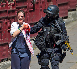 © Licensed to London News Pictures. 30/06/2015. London, UK. An actor with a severed arm. Members of the emergency service take part in a mocked-up terrorist firearms attack at Aldwych station in central London. The exercise is the biggest to take place in London and is happening a week after dozens of people where killed when a gunman opened fire on a beach in Tunisia.  Photo credit: Ben Cawthra/LNP