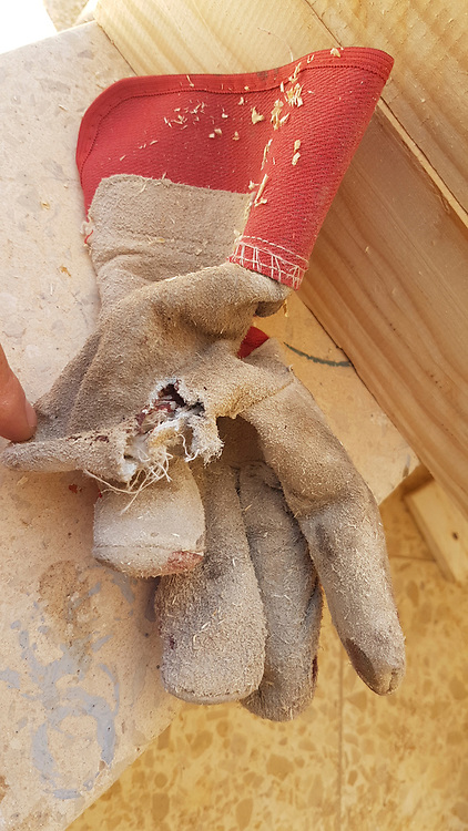 Cut and damaged protective glove while using an electric rotary saw the worker injured his thumb on the revolving blade. luckily, the operator was wearing protective gloves which prevented much more damage to his finger