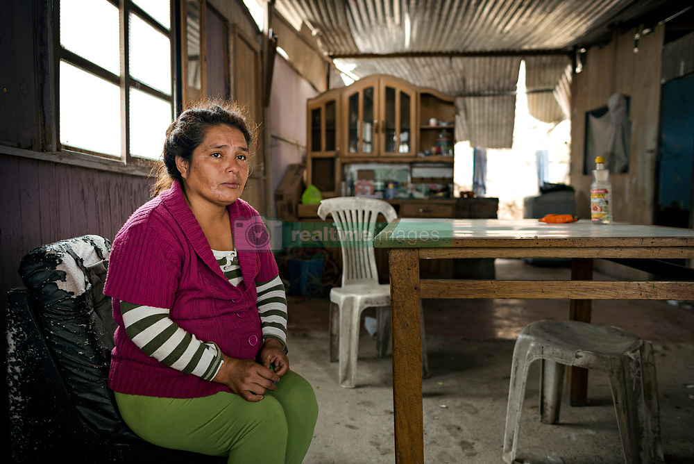 NO WEB/NO APPS - (Text available) Maria, a 44-year-old housewife feels 'discriminated and forgotten by the country. I'm curious to know what people think about the other side of the wall. I'd like to know why they wanted to put us apart. I'd like them to come and see our livinge conditions. We are all alike' she said, in Lima, Peru in May 2017. In Peru's capital Lima, a three-meter-high concrete wall topped with reels of razor wire separates two areas. The so-called 'Wall of Shame' - sometimes nicknamed 'Peru's Berlin Wall' - divides the urbanisation of Las Casuarinas, where some of the country's richest inhabitants live, and the poor suburb of Vista Hermosa next door. It was initially put up over fears that the inhabitants from the poor neighbourhood would steal from wealthy fellow citizens living nearby. On the rich side of the wall, the price for a square meter can exceed 2,000 dollars. To enter the area, you must show your ID to the guards watching the gate at the bottom of the hill. Former high-ranking politicians and bank directors live here. Their houses are surrounded by lush gardens and swimming pools despite the scarcity of water. Meanwhile, on the San Juan de Miraflores side, residents often fall victim to robbery and theft. They live in houses of barely 25m², made from scrap material, surrounded by the sand and earth characteristic of Lima's desert landscape. Photo by Giacomo D'Orlando/ABACAPRESS.COM