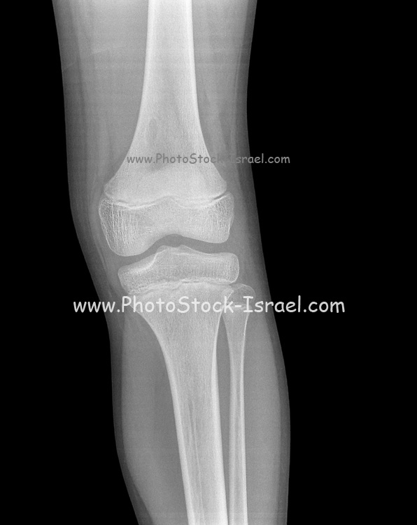 13 year old male with a contusion on the left knee. front view. no fracture