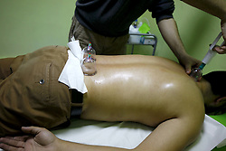 A patient receives a Hijama treatment in Algiers, December 18, 2016. Widely practiced in Algeria, Hijama, or wet cupping, is a complementary therapy that needs tighter regulation, say experienced practitioners in Western countries. Hijama is used to treat a wide range of conditions including migraines and hay fever and involves cutting the skin and drawing blood with suction cups. Therapists warn that some offering the procedure to patients are unqualified. And this is putting patients' health at risk. Photo by Billal Bensalem/ABACAPRESS.COM