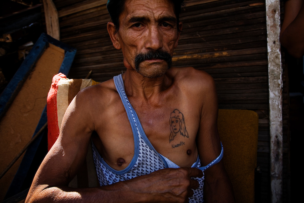 A roma IDP (internally displaced person) in a UNHCR camp in north Mitrovica shows a tattoo of his wife.