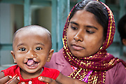 Amina and her 10 month old son, Asirul, wait to see a doctor for cleft palate surgery at the IFB Chuandanga Hospital in the western region of Bangladesh..Impact Foundation Bangladesh (IFB) provide care, support and treatment to people with disabilities in Bangladesh.