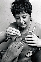 Nurse applying eye drops to male, hospital, Nottingham UK 1991