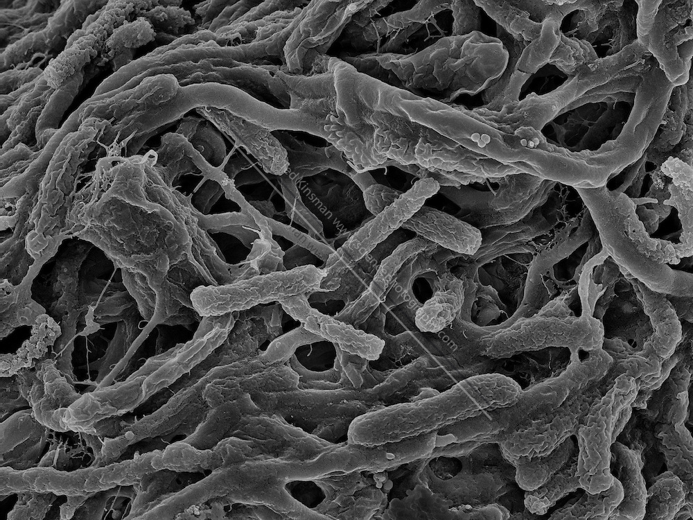 Thermophilic bacteria . Collected in the summer of 2012 in 60C water in Yellowstone National Park, Wyoming USA.  This scanning electron micrograh (SEM) was shot at 17,131X magnification and the filed of view is 7 um.  This type of bacteria is adapted to thrive at high water temperatures and is currently the focus of biological researchers.   Bacteria that can live in these extreme conditions are called thermophiles or extremophiles.
