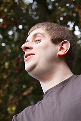 Portrait of young man with autism in garden. Cleared for Mental Health issues.