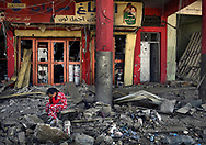 A little girl holds her head in her hands amid ruins of the Old City in West Mosul, Iraq on July 6, 2017. Most who survived now face an uncertain future, forgotten in the limbo of IDP (Internally Displaced Persons) camps, their lives shattered. They lost loved ones and all personal belongings while surviving day to day, in non-stop terror, between suicide bombs and repressive ISIS doctrine for three long years. The war in Mosul is over but it left a society in ruins and a continuing humanitarian crisis for these victims facing an uncertain future. (photo by Carol Guzy)