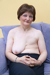 Woman who has had a mastectomy; the removal of a breast as a result of breast cancer,