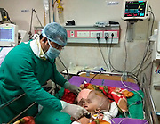 """EXCLUSIVE<br /> Doctors successfully help baby boy diagnosed with world 's largest head<br /> <br /> Doctors in India performed a successful surgery on a seven-month-old baby boy with giant head measuring 96cm in circumference — that is among the world's largest. <br /> <br /> The doctors have removed 3.7 liters of fluid from baby's head and managed to reduce the size of the head to 70cm in the past one and a half month's of treatment<br /> <br /> Dr Dilip Parida, superintendent of the AIIMS hospital at Bhuwaneshwar, said: """"The child was admitted with us since November 20. The head was containing almost 5.5 liters of fluid inside that. Till now we have removed 3.7 liters of fluid so far by external ventricular drainage. Subsequently, we have placed a stunt inside baby head which is working perfectly. Now, the circumference of the head has come down from 96cm to 70cm.  The cognitive functions of the child have improved a lot. The child is stable and has responded well to the treatment. Since the cranial bones are not fused and floating, now the real challenge is to find a way to adjust the cranial bones. We have applied bandages around the skull and planning to do cranoplasty at a later stage, if required. The baby was absolutely bed-ridden earlier, now it can take turns. We are happy with the developments and the parents are also happy to see the improvements,"""" says Dr Parida. <br /> <br /> Roona Begum, a Tripura-born girl had made headlines around the world after her head swelled up to 94 cm due to the same medical condition in 2011. <br /> <br /> According to medical records, Roona Bengam's head was the largest. """"We are checking medical records across the globe to verify if an hydrocephalus existed of an even bigger size,"""" says Dr Parida.<br /> <br /> Mrityunjay's parents — Kamalesh Das and Kavita — are from Ranpur of Nayagarh district, India. Kamalesh, 35, works as a daily wage worker in Kolkata, while his wife is a homemaker who lives in Ranpur. <br /> <br /> """"W"""