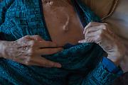 """Margartia Pereira (71), en el 2017 le diagnosticaron cáncer pulmonar terminal. Para calmar sus dolores, Alejandra, su hija le inyecta una dosis de morfina cada cuatro horas. Desde la ventana de su pieza se puede ver el cordón industrial frente al mar. <br /> <br /> """"Necesito saber cuánto me queda, no quiero sufrir más, quiero irme. Le pido a Dios que me lleve, le digo a mis nietas que sean felices cuando me vean salir. Feliz me voy""""<br /> <br /> <br /> Ventanas, Chile, 3 de septiembre de 2018"""
