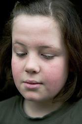 Young girl looking sad,