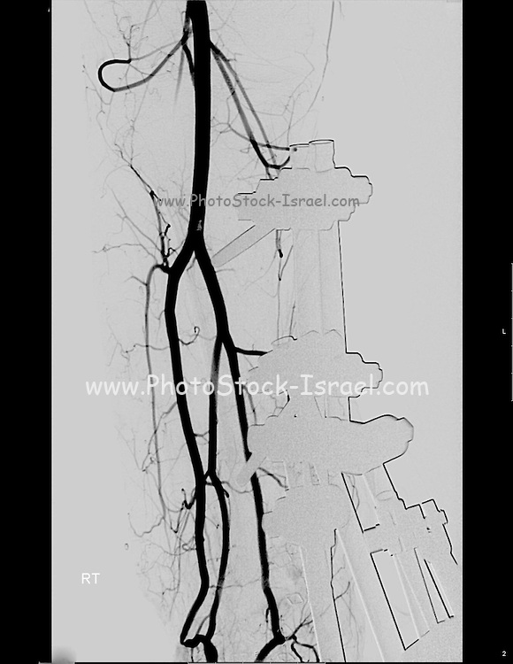 X-ray of the Tibia and Fibula of a 23 year old male patient. Metal fixes were inserted to fix a bone fracture. The blood vessels are visible due to a dye that was injected into the blood stream