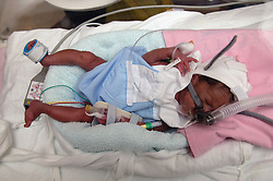 Premature baby boy in an incubator in the neonatal unit,
