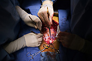 """Mark W. Connolly, M.D., chief of Cardiovascular and Thoracic Surgery at St. Michael's Hospital, prepares to graft a saphenous vein (harvested from the patient's leg) to the Aorta, a major artery that delivers oxygenated blood away from the heart to the body, in the operating room of the hospital in Newark, New Jersey, Wednesday, January 17, 2007.  This particular procedure is known as OPCAB--off-pump coronary artery bypass.  Although it involves opening the patient's chest cavity, it is called a """"minimally invasive"""" procedure since the patient's heart is operated on while still beating, avoiding use of the heart lung machine which is known to add considerable stress to a patient's body.  Special instruments are used to stabilize the heart while the doctor performs surgery.  Many patients are being directed by doctors and consultants to have their heart problems treated with stents--a minimally invasive procedure that does not involve opening the chest cavity--rather than considering the conventional open-heart bypass procedure as a viable option.  It is believed that doctors and consultants pushing stents often do not fully inform their patients of the alternatives that exist, and there is mounting evidence to suggest that thousands of patients die each year who could have lived longer had they undergone bypass surgery.  NOTE TO EDITOR:  THIS PICTURE IS VERY COMPLICATED AND NOT EASY TO """"READ"""".  The PA's hands to the left, hold the end of a saphenous vein, while Dr. Connolly's hand, right, holds an instrument that touches the Aorta where the graft will take place."""