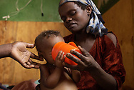 Tadelech Sherecho feeds her severely malnourished three year old daughter Meselech Mekeno, with the help of a nurse, a special nutrient formula at the Soudo Therapeutic Day Centre in Southern Ethiopia. Meselech was ill for six days before she could get admitted to the centre, as there was no space for her due to limited funding. <br />Photo: Chris Young 3/6/03<br />© Chris Young