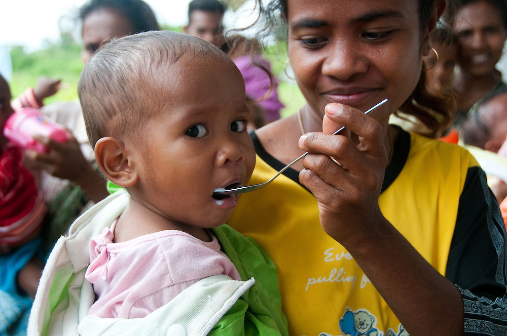 Poverty in West Timor, Indonesia has led to chronic malnutrition.  Clinics in the area teach families about nutrition and the value of breast feeding as long as possible. They also provide emergency nutrition to severely malnourished children.