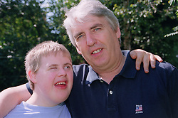 Father with arm around teenage son with Downs Syndrome smiling,