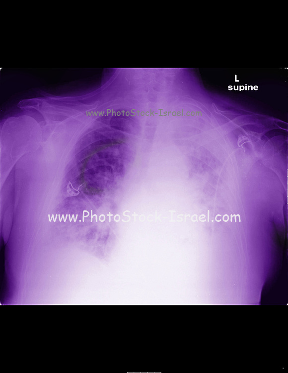 82 year old Patient with malignant mesothelioma cancer