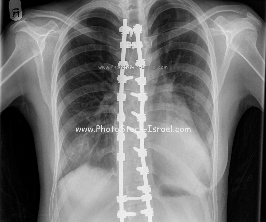 Spinal fusion, also known as spondylodesis or spondylosyndesis, x-ray of a 16 year old female front view