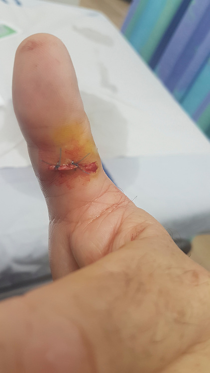 Stitching an injured thumb while using an electric rotary saw the worker injured his thumb on the revolving blade. luckily, the operator was wearing protective gloves which prevented much more damage to his finger. Model release available